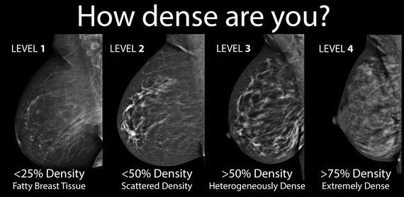 Breast Density Categories from American College of  Radiology